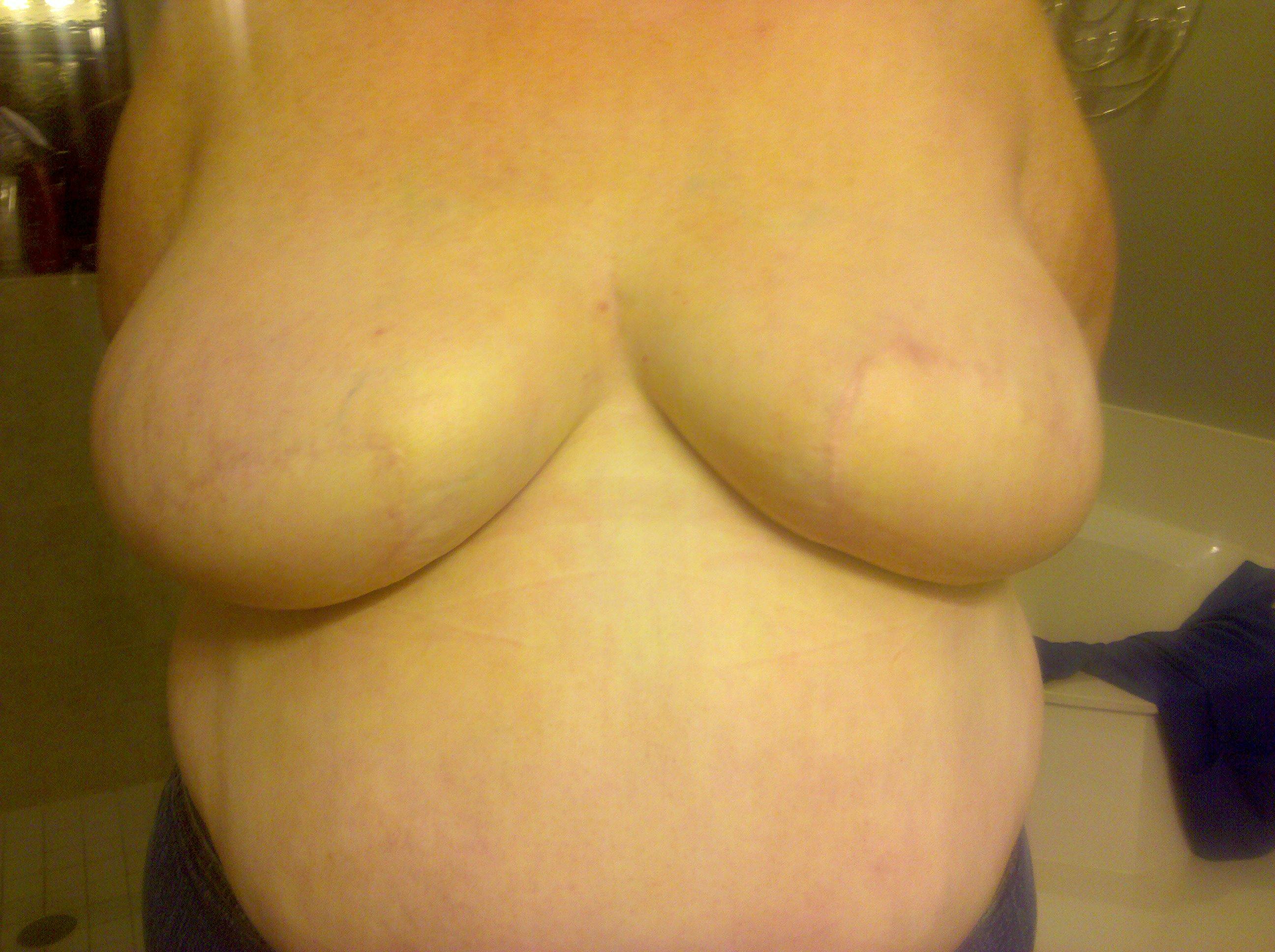 Boob With No Nipple 48